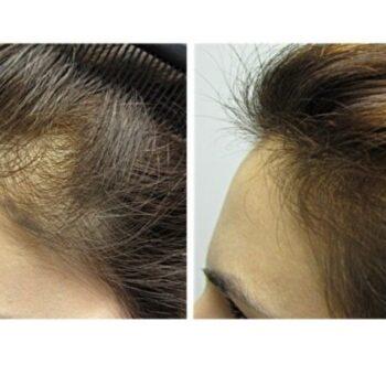 cuánto crece el cabello